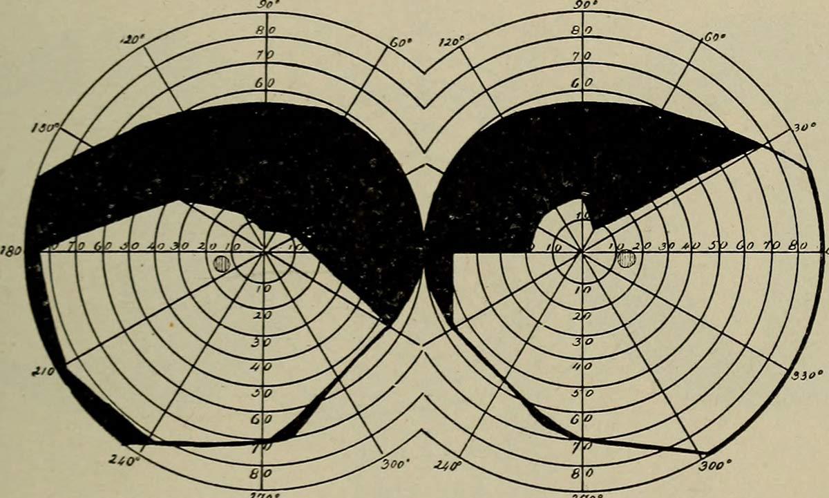 Visual field diagram