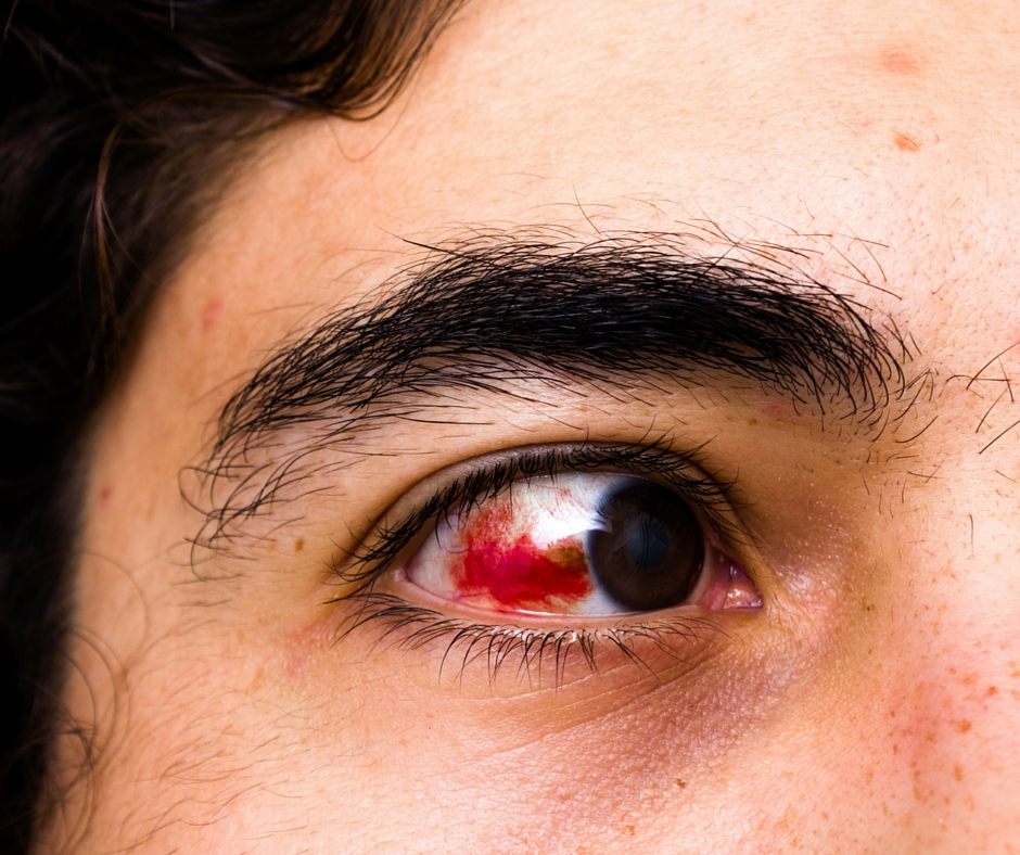 Hyphema, blood inside the front part of the eye