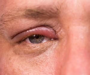 Stye on the upper eyelid