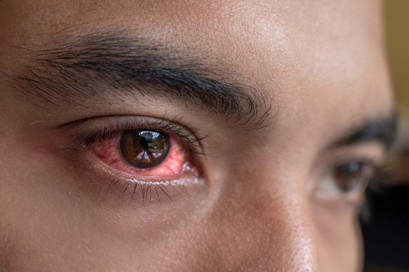 is your pink eye a symptom of covid 19
