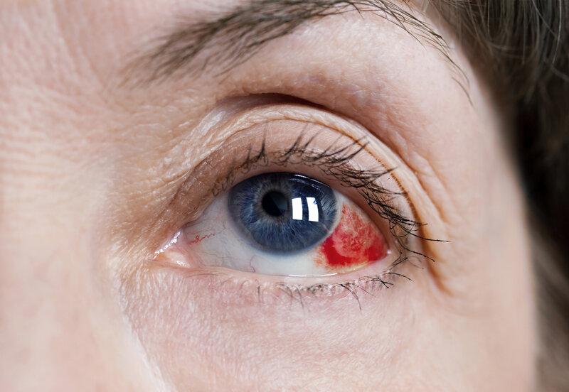 ocular hypertension a precursor to glaucoma