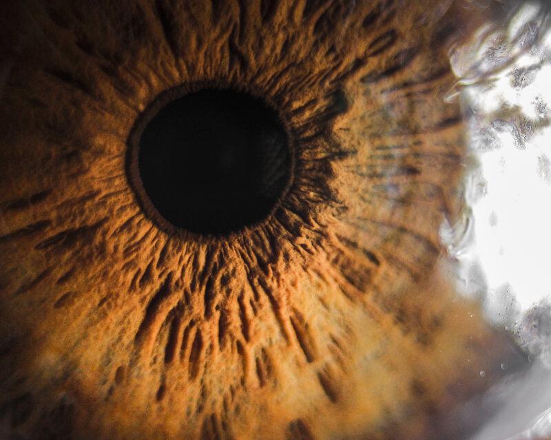 retinitis pigmentosa symptoms treatment